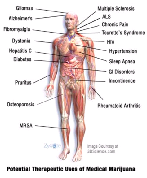 The Cannabinoids in the Cannabis plant are very beneficial for inflammation, which is a major component in many chronic diseases. Chronic inflammation leads to chronic disease.