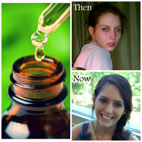 Before and after Lyme Disease