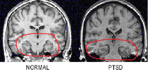 You can see the physical changes in the PTSD sufferers brain compared to that of a normal human brain in this image.
