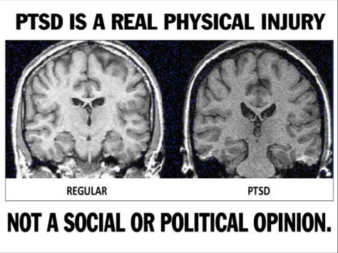 PTSD is not just a psychological injury. It is a physical injury as well. Changes in the brain in Adult survivors of child abuse have these changes in their brains. It is a painful disorder that is not physically visible but is debilitating!